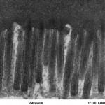 DPP4 Enzym en Leaky Gut of lekkende darm