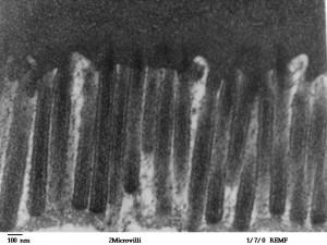 Het DPP4 enzym is een veelzijdig enzym dat voornamelijk wordt aangemaakt in de alvleesklier. Het vormt een belangrijke factor bij het herstel van een leaky gut. De lekkende darm