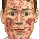 Darm-hersen-huid-as: verband darmflora, psyche en huid