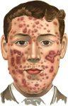 Darm-hersen-huid-as verband darmflora psyche huid