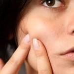 8 Gevoelige huidzones voor acne
