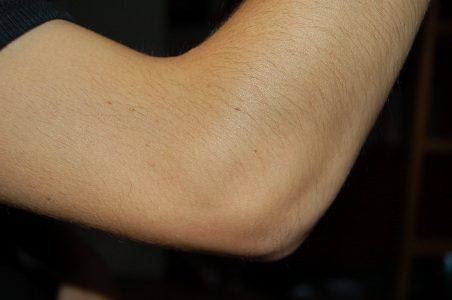 huidproblemen acne psoriasis eczeem
