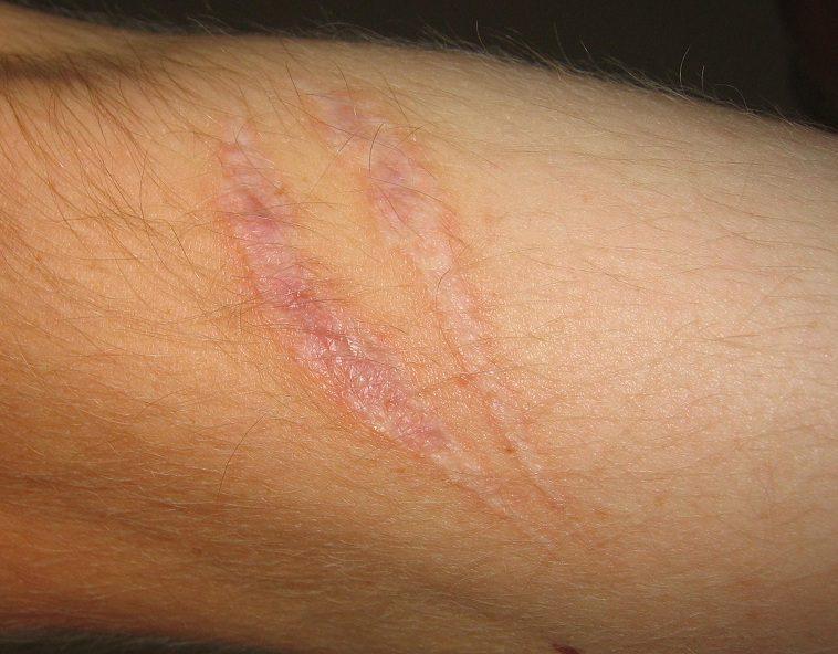 littekens behandelen