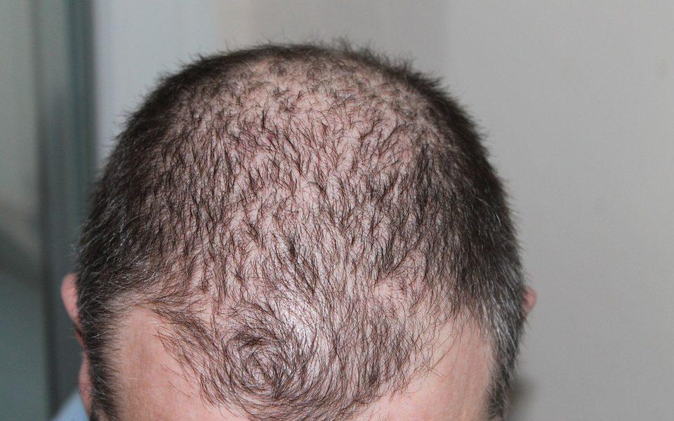 vroegtijdige haaruitval haarverlies kaalheid DHT progesteron