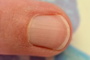 geribbelde nagels eiwittekort maagzuurtekort
