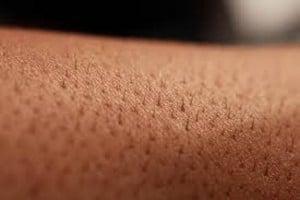 testosteron huid