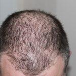 Hoe voorkom je vroegtijdige haaruitval en kaalheid?