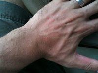 zonneallergie fotodermatitis